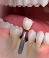 Clinical Evaluation of 762 Single-Tooth, Locking-Taper Implants: A Prospective Study with 1- to 12-Years of Follow-Up