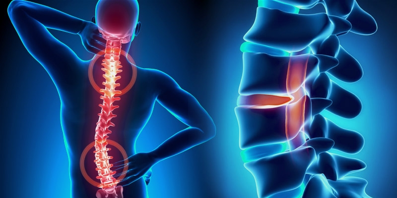 Journal of Spine & Neurobiology