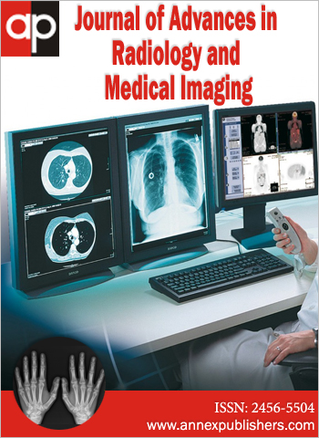 Journal of Advances in Radiology and Medical Imaging
